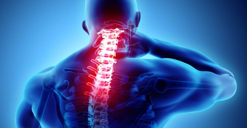 Cervical-Radiculopathy-img