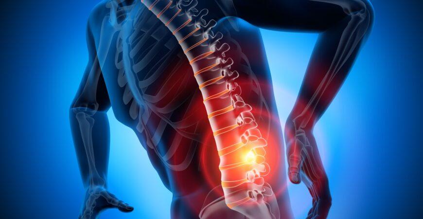 3D Rendering - Starke Schmerzen in der Wirbelsäule und Bandscheiben - Bandscheibenvorfall