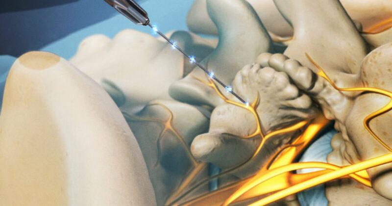 Lumbar-radiofrequency-neurotomy-image