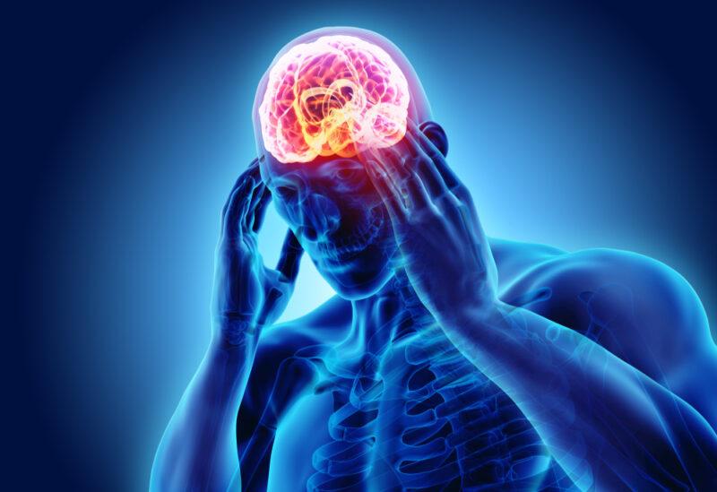 Migraine-headaches-image