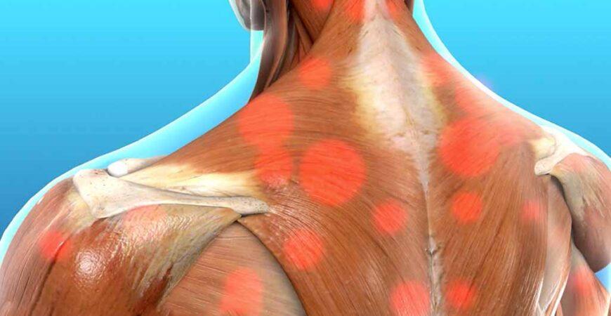 Myofascial-Pain-Syndrome-Img