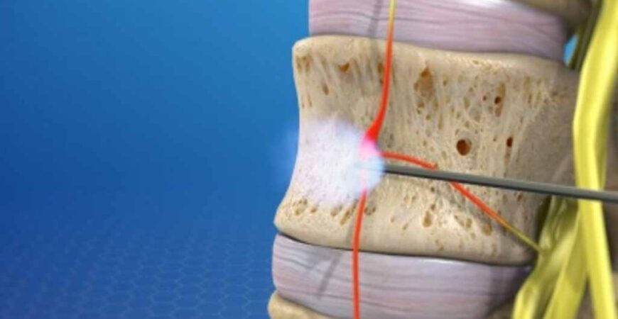Nerve-Blocks-Img
