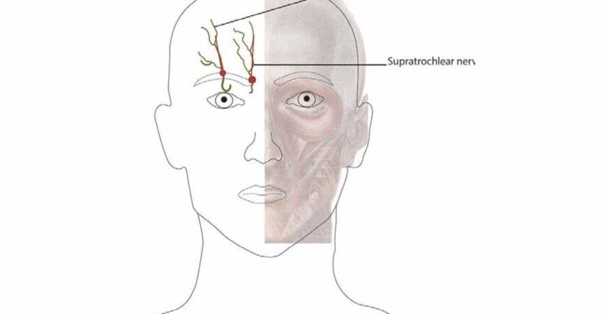 Supraorbital-Nerve-Block-img